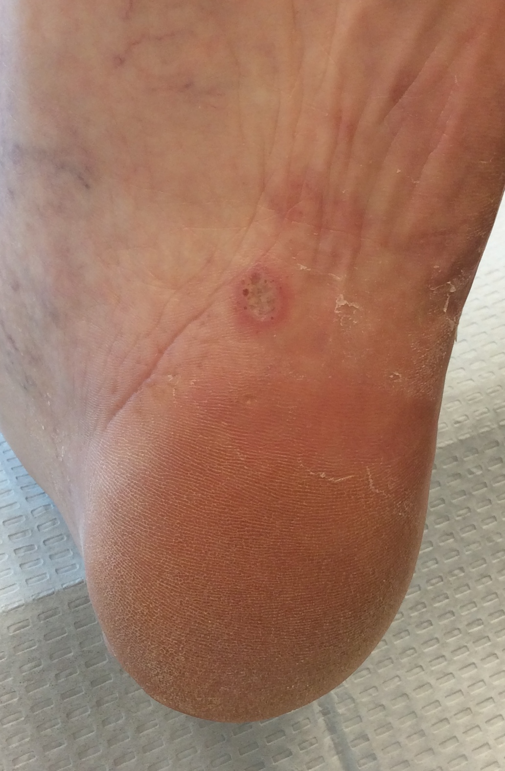 Bottom of foot has hard skin — pic 6