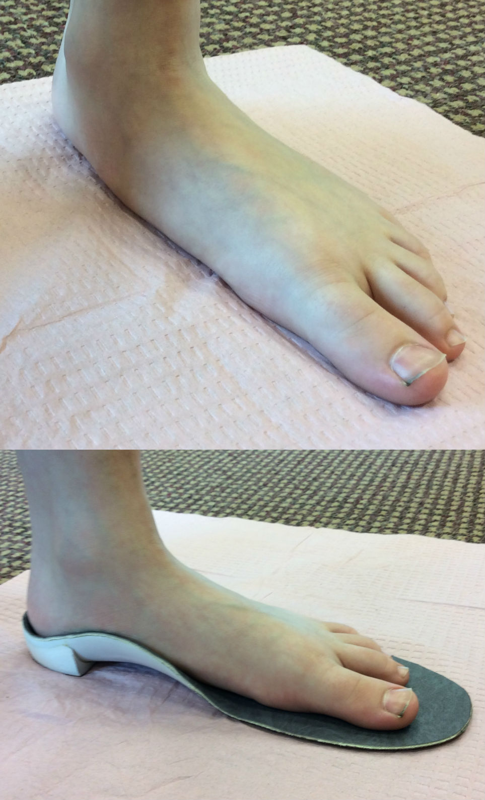 before & after orthotics