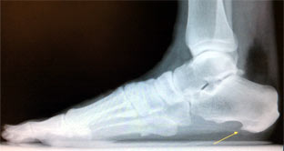 X-ray of foot with bone spur.
