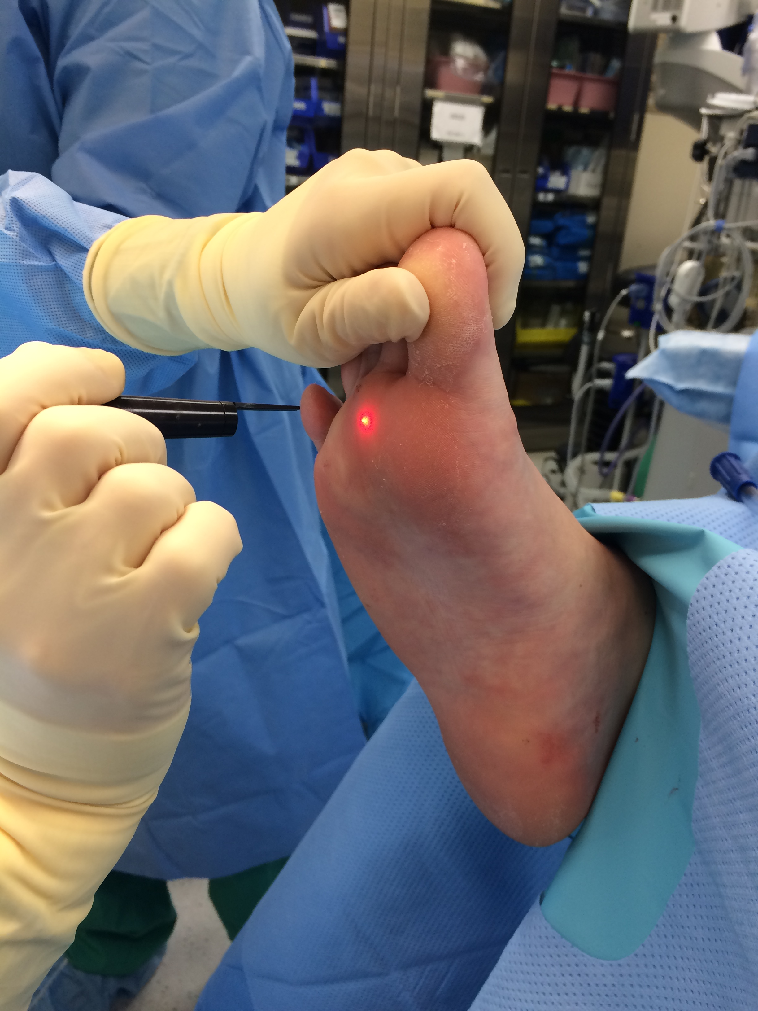 Laser Wart Removal