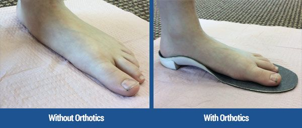 With and without custom foot orthotics.